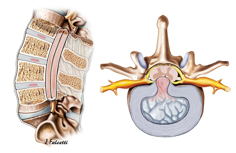 Healthy back Modern Mayr Medicine